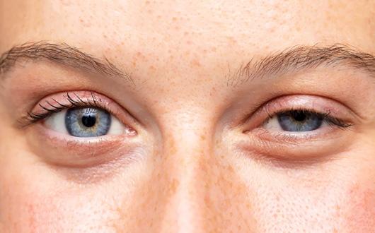 Göz Kapağı Düşüklüğü