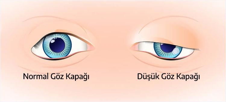 Göz Kapağı Düşüklüğü Ameliyatı Ankara